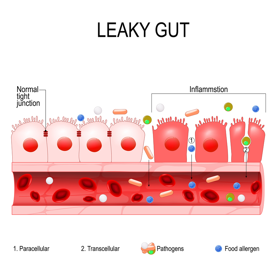 Leaky Gut – It Really is a Thing!